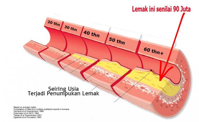 Penyumbatan pembuluh darah bisa berakibat sangat fatal, mulai dari serangan jantung, stroke hingga kematian!!!